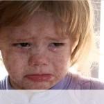 ילד חולה חצבת, מחלה מידבקת מאוד שמחסנים נגדה בשגרה החל מגיל שנה