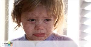 ילד חולה חצבת. האם באיטליה יהיה ניתן לעצור את המגפה עם האיסור בבתי הספר?