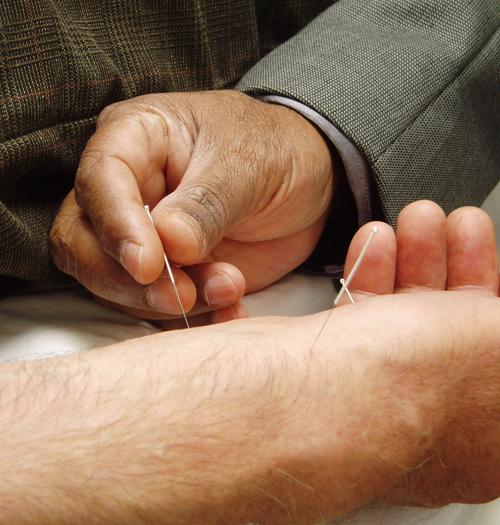 תמונה של יד עם מחטי דיקור. ניתן להידבק במחלות בדיקור ולכן הוא רלוונטי לנושא של תרומת דם.