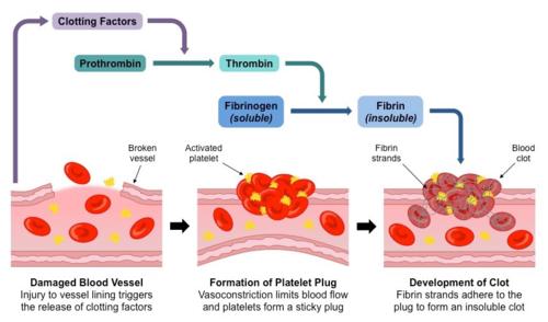 השלבים ביצירת קריש דם